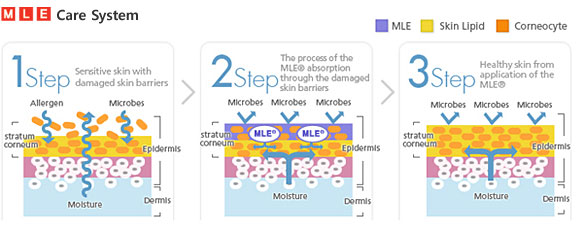 MLE Care System